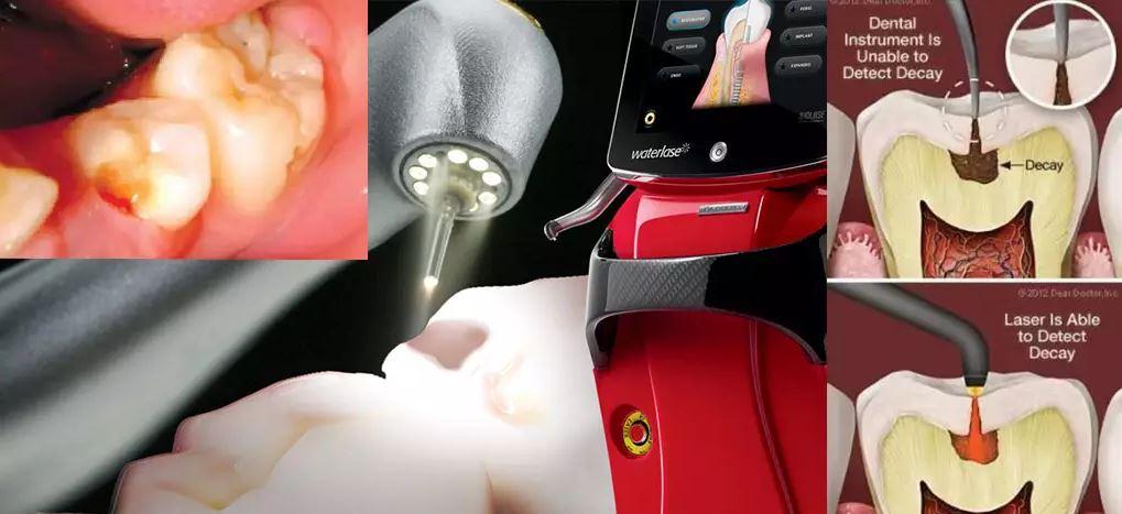 پرکردن دندان و آماده سازی ترمیم دندان با لیزر دندانپزشکی بافت سخت