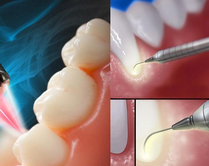 دندانپزشکی لیزری بافت نرم و سخت برای بهبود درمان های لثه و دندان
