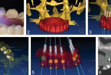 تصویر برنامه ریزی ایمپلنت دیجیتال در ترمیم کامل 7 دندان با جراحی کم تهاجمی