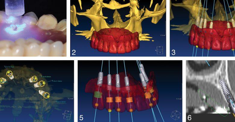 Photo of برنامه ریزی ایمپلنت دیجیتال در ترمیم کامل 7 دندان با جراحی کم تهاجمی