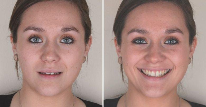 Photo of یک مورد طراحی لبخند دیجیتال با لمینت دندان سرامیک و کامپوزیت