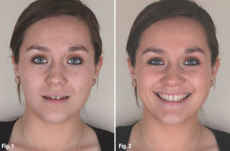 طراحی لبخند دیجیتال واقعی با ابزارهای دندانپزشکی مدرن