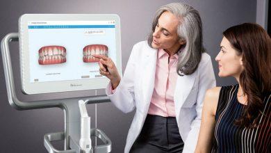 Photo of اسکنر دهانی 3 بعدی iTero در دندانپزشکی دیجیتال-آنچه باید بدانید