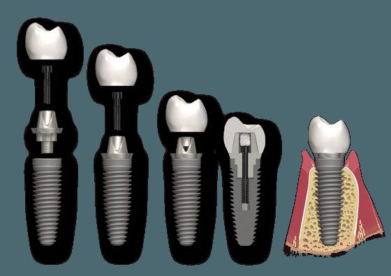 تعریف هزینه ایمپلنت دندان برای تمام قسمت های آن