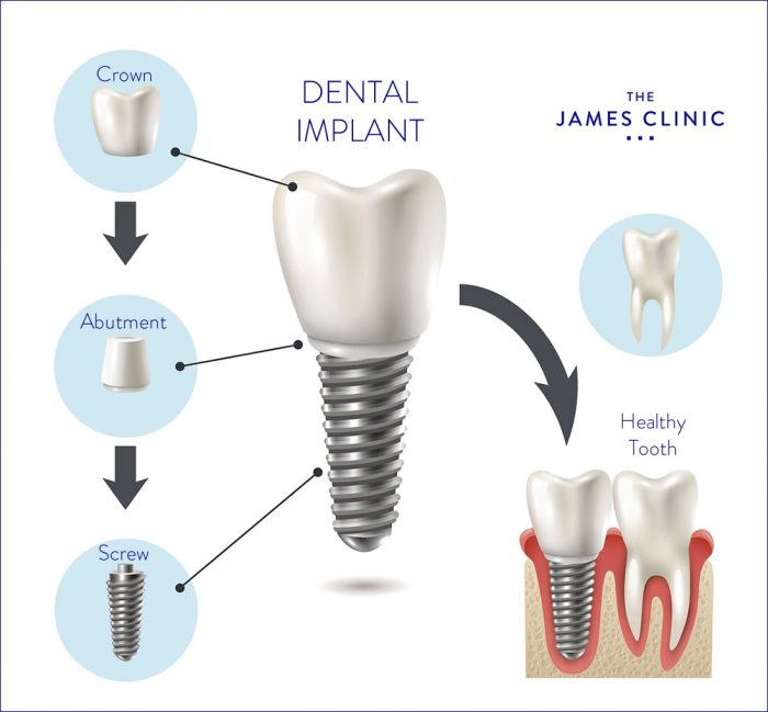 قیمت ایمپلنت دندان شامل سه بخش اصلی و جراحی کاشت پایه پیچی است