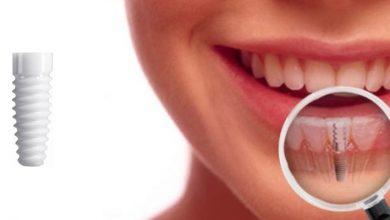 هزینه ایمپلنت دندان برای ایمپلنت های تکی، چندتایی و ست کامل