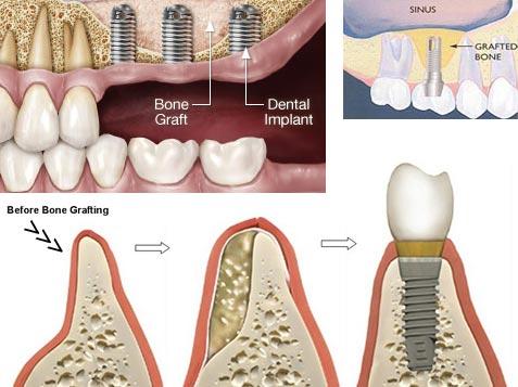 ترمیم استخوان تحلیل رفته برای انجام ایمپلنت دندان