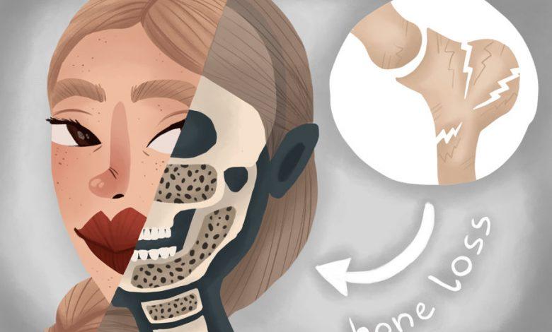 استخوان کافی برای ایمپلنت دندان وجود ندارد؟ درمانی صحیح برای زیبایی لبخند شما