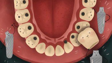 Photo of فرایند ایمپلنت دندان، در هر مرحله از آن چه انتظاری وجود دارد؟