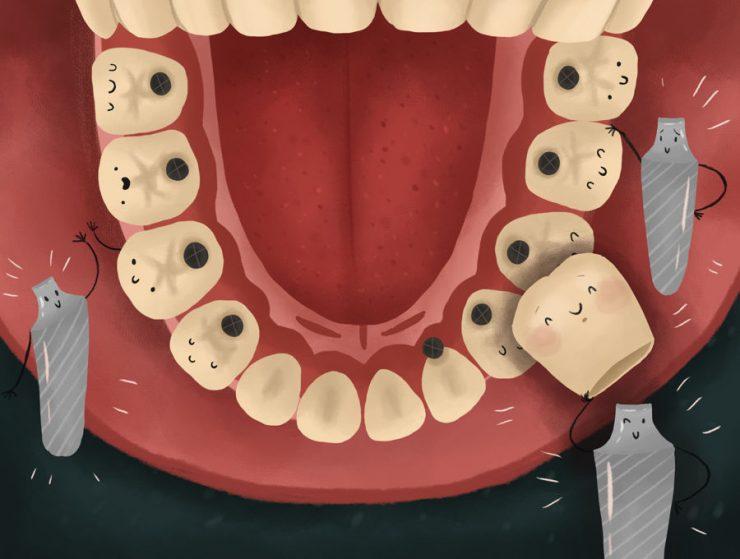 جدول زمانی ایمپلنت دندان، در هر مرحله از آن چه انتظاری وجود دارد؟