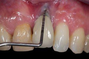 تصویری از علائم پس زدن ایمپلنت دندان