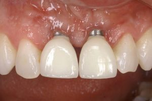 یک نمونه از علائم پس زدن ایمپلنت دندان