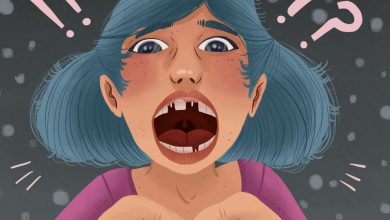 Photo of با شل شدن ایمپلنت دندان مشکل دارید؟ درباره علل، نشانهها و درمان بدانید.