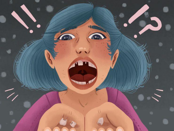با شل شدن ایمپلنت دندان مشکل دارید؟ درباره علل، نشانهها و درمان بدانید.