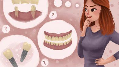 Photo of گزینههای جایگزین برای دندان از دست رفته: این کار چقدر هزینه دارد؟