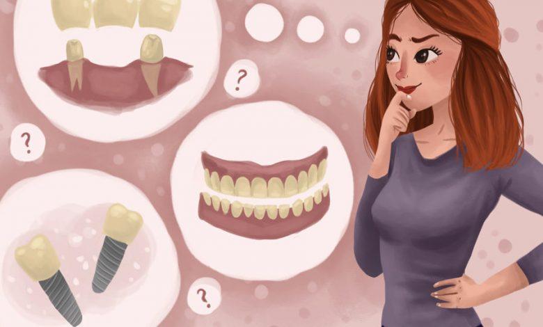 گزینههای جایگزین برای دندان گم شده: این کار چقدر هزینه دارد؟