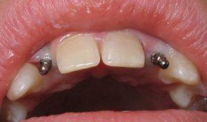 کاشت مینی ایمپلنت دندان در دو دندان جلویی
