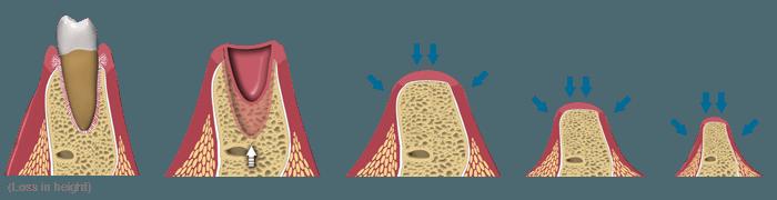 معمولا تحلیل رفتن استخوان فک بعد از کشیدن دندانها و خالی ماند جای آنها اتفاق می افتد.