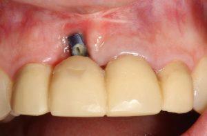 شکست یا عدم موفقیت ایمپلنت دندان