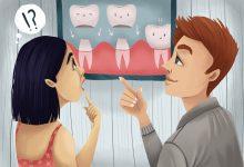 تصویر روکش دندان یا تاج دندان چیست: مراحل، انواع، مراقبتها و مشکلات
