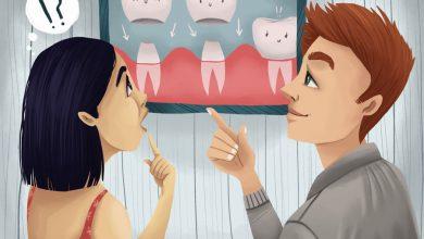 Photo of روکش دندان یا تاج دندان چیست: مراحل، انواع، مراقبت ها و مشکلات