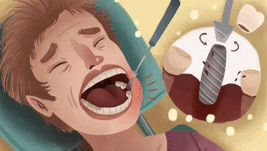 Photo of خارج کردن ایمپلنت دندان از فک: عوامل، روش ها، درد و هزینه