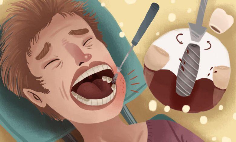 خارج کردن ایمپلنت دندان از فک: عوامل، روش ها، درد و هزینه