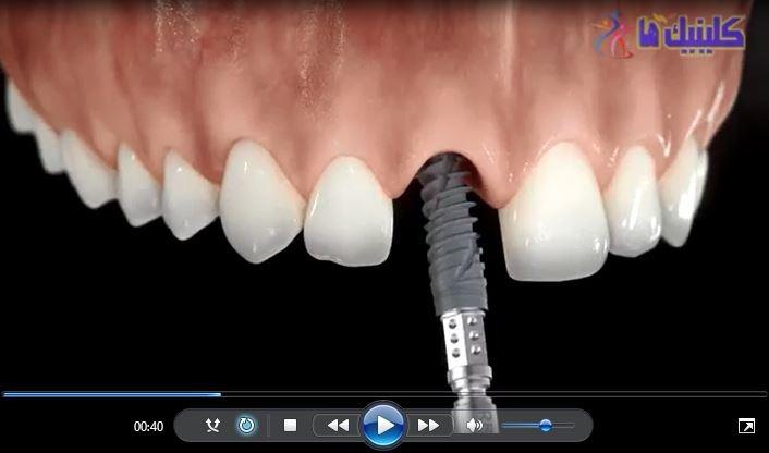 فیلم ایمپلنت دندان