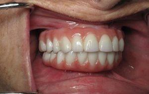 نمونه ایمپلنت دندان مصنوعی