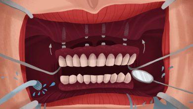 Photo of انواع ایمپلنت دندان مصنوعی: متصل کردن (متحرک) و پیچ کردن (ثابت)