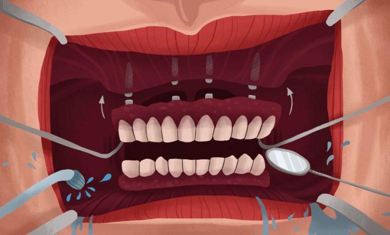ایمپلنت دندان مصنوعی- متصل کردن (متحرک) و پیچ کردن (ثابت)