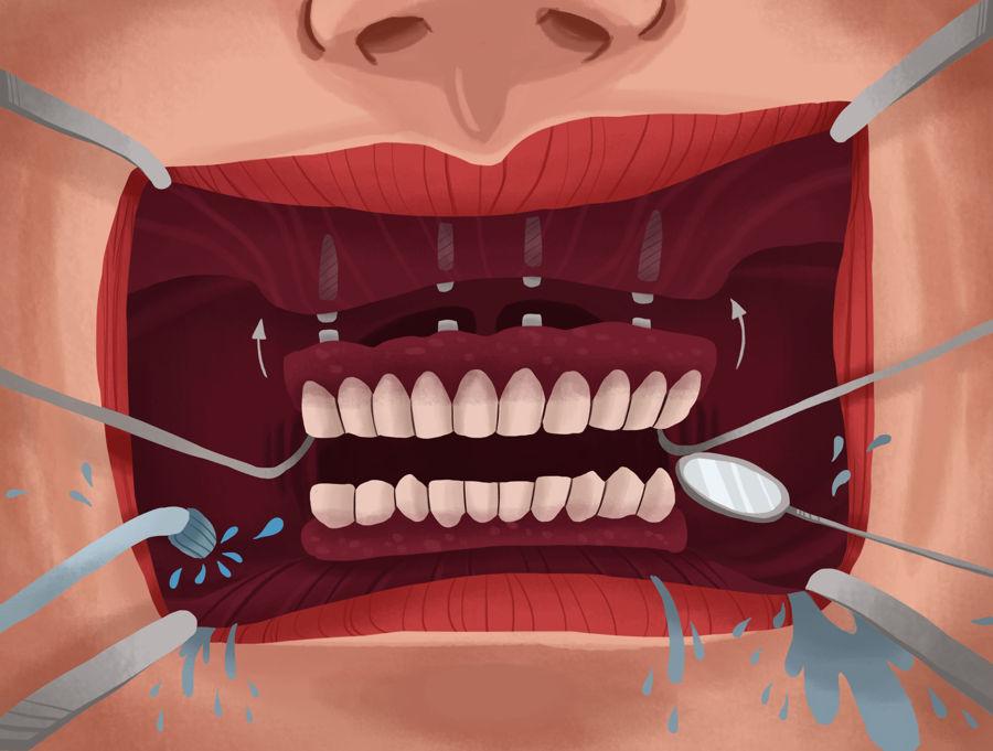 ایمپلنت دندان مصنوعی: متصل کردن (متحرک) و پیچ کردن (ثابت)