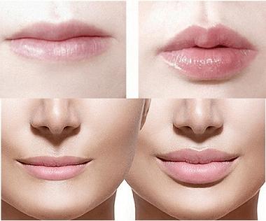 تزریق لب لب و دور دهان اختصاصی
