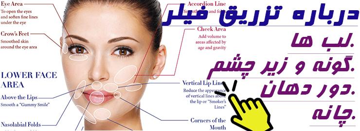 تزریق ژل لب و صورت