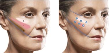 تزریق چربی گونه برای حجم دهی میانه صورت