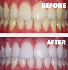 بلیچینگ دندان با لیزر دندانپزشکی