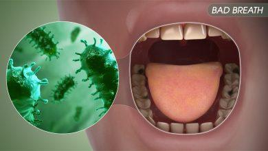 Photo of علت بوی بد دهان و عوامل مشخص و پنهانی در این مورد چیست؟