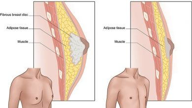 Photo of کوچک کردن سینه مردان با جراحی ژنیکوماستی: آنچه باید بدانید!؟