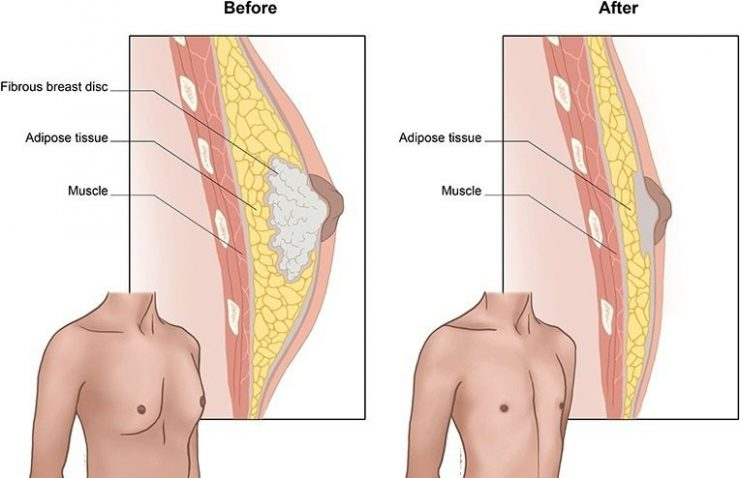 کوچک کردن سینه مردان با جراحی ژنیکوماستی: آنچه باید بدانید!؟
