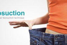 اصلاح و تجدید عمل لیپوساکشن چیست و چه موقع انجام می شود؟