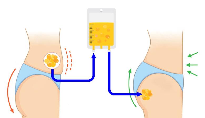 تزریق چربی به باسن برزیلی برای حجم دهی و لیفت، آنچه که باید بدانید!؟