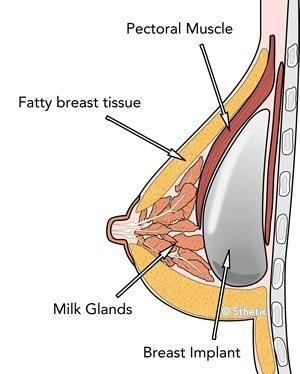پروتز سینه با جنس سیلیکونی در مقابل پروتز نمکی