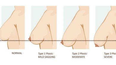 Photo of عمل لیفت سینه با پروتز یا ایمپلنت چیست، آنچه که باید بدانید!؟