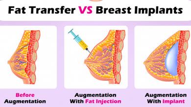 Photo of بزرگ کردن سینه با پروتز سینه، تزریق چربی و لیفت آنها: آنچه باید بدانید!؟