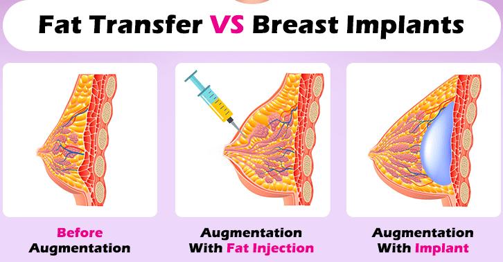 بزرگ کردن سینه و لیفت با پروتز سینه و تزریق چربی: آنچه باید بدانید!؟