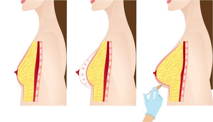 تزریق چربی به سینه برای لیفت و افزایش سایز، آنچه که باید بدانید!؟