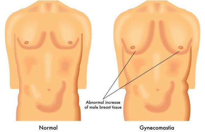 gynecomastia یا ژنیکوماستی یعنی بزرگ شدن سینه مردان