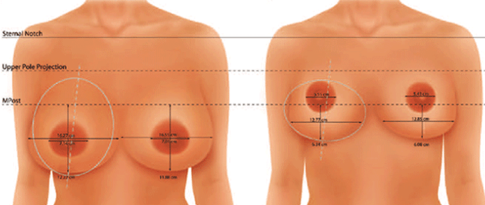 عمل ماموپلاستی برای کوچ کردن سینه زنان چگونه انجام می شود؟