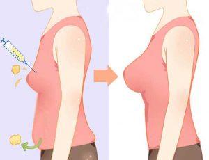 در طول تزریق چربی برای بزرگ کردن سینه چه اتفاقی میافتد؟