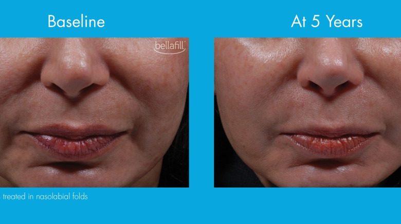 درباره تزریق ژل بلافیل یا فیلر بلافیل برای زیبایی صورت آنچه که باید بدانید!؟